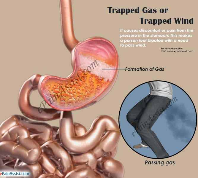 Common Problem – Trapped Gas – Fit Nepal